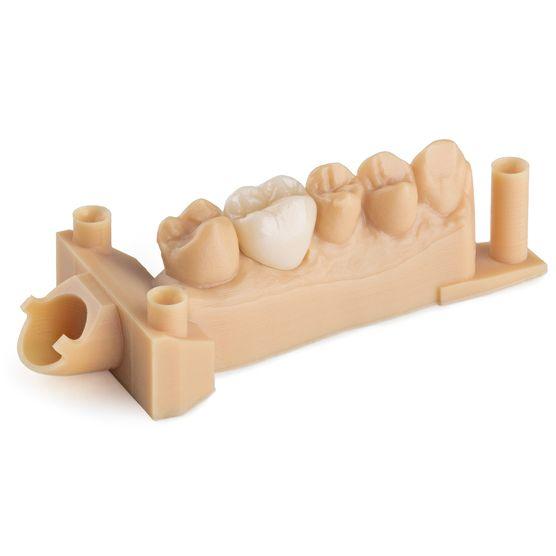 Formlabs Form 2 Dental Model Resin 3DHUB.gr