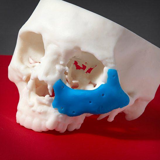 formlabs-form2-color-kit-resin-3DHUBgr-06