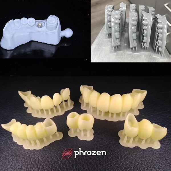 Phrozen-shuffle-dental-3DHUBgr-01